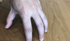 小指vs薬指vs中指~成長と神経細胞の進化~